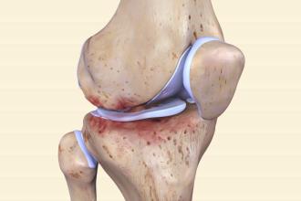 OA knee joint
