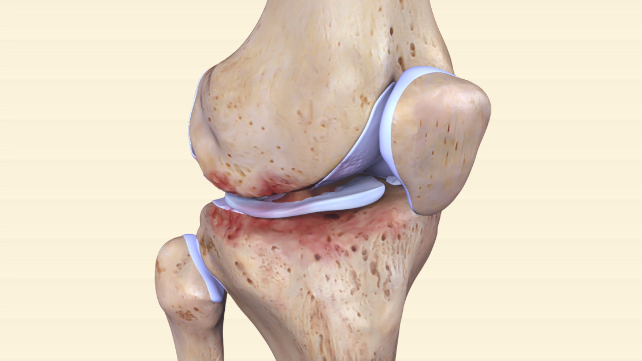 OA knee joint